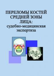 Переломы костей средней зоны лица: судебно-медицинская экспертиза ISBN 978-985-06-2518-2